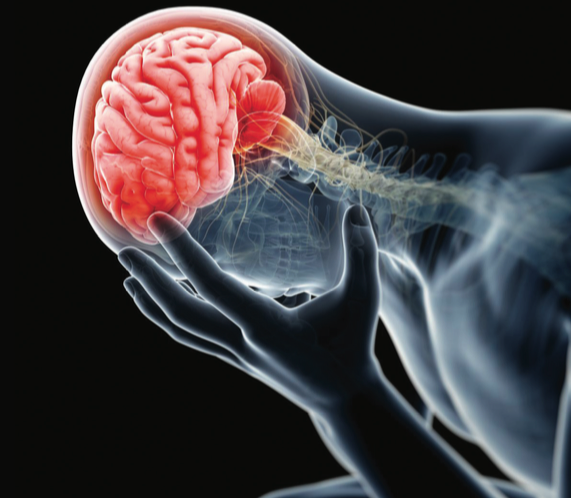 Concussions: Facts & Treatments